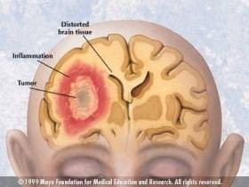 DECT-Schnurlostelefone verursachen Veränderungen der Herzfrequenz und beeinflussen das Nervensystem
