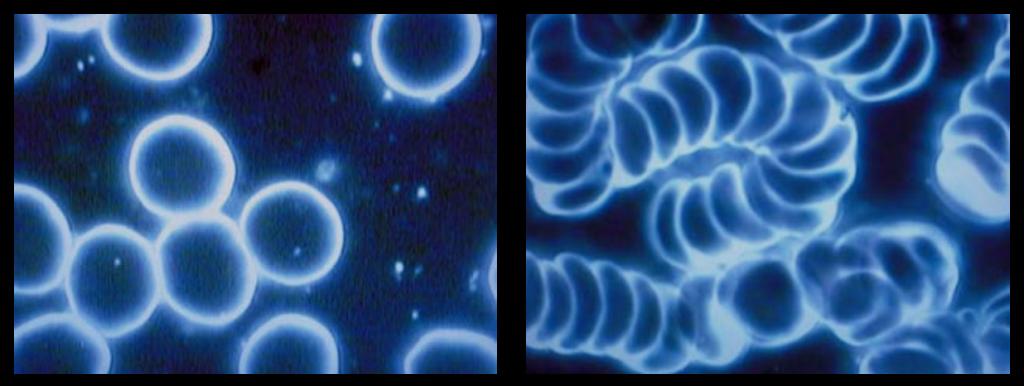 Elektrosmog-Dunkelfeldmikroskopie-Geldrollenbildung