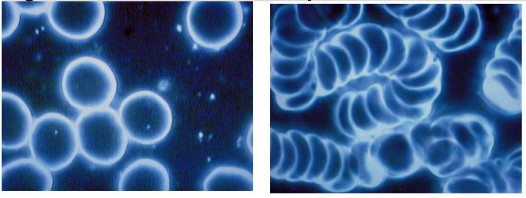 Elektrosmog-Dunkelfeldmikroskopie-Handy